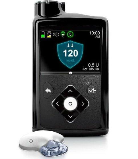 """בשורה של ממש לחולי הסוכרת: לראשונה לאומית שירותי בריאות תעניק את מערכת """"הלבלב המלאכותי"""""""