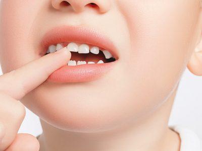בחופש הגדול – עלייה בחבלות שיניים. סקירה דוסיז צרכנות